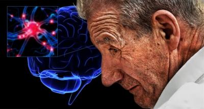 Nueva terapia contiene el avance del Parkinson