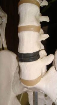 Prótesis de disco intervertebral lumbar móvil.