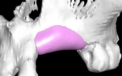 huesos 01