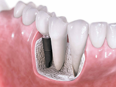 implantes dentales 01