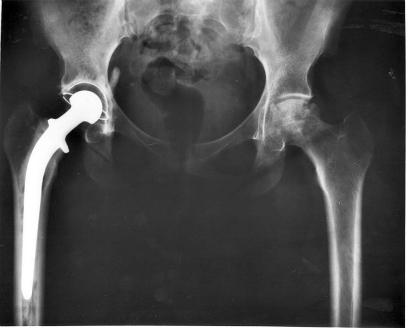 Implantedecadera