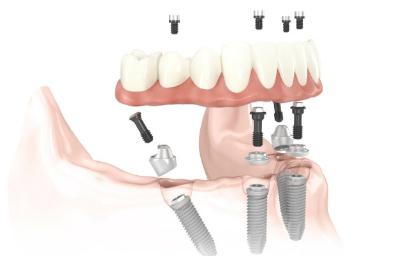 implantesallon4