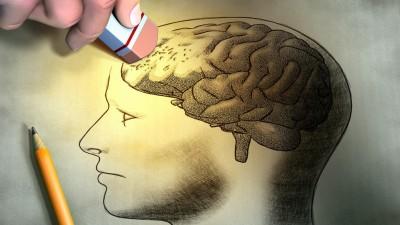 1 deterioro cognitivo